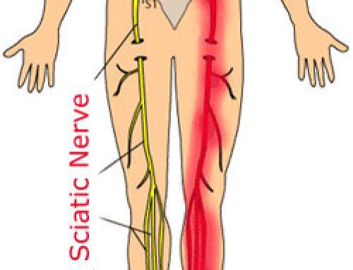 Išias – bolečine v spodnjem delu hrbta, ki se širi v nogo